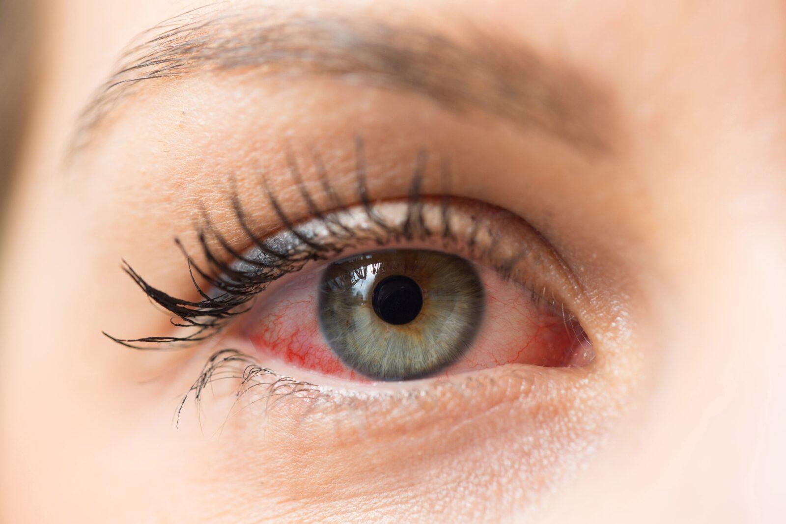 closeup of woman's red eye